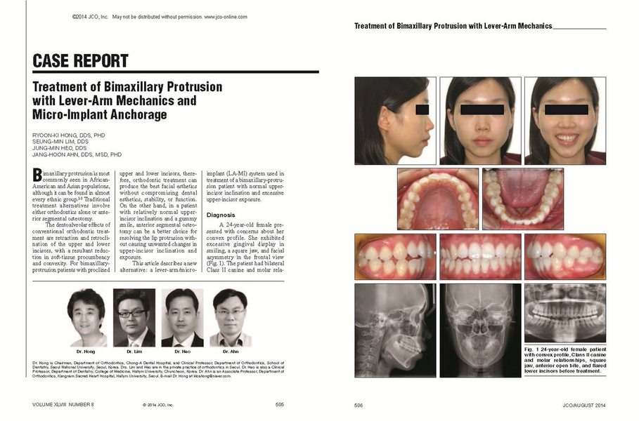 Treatment of bimaxillary protrusion with lever-arm mechanics and micro-implant anchorage - 설측교정전문 청아치과의원