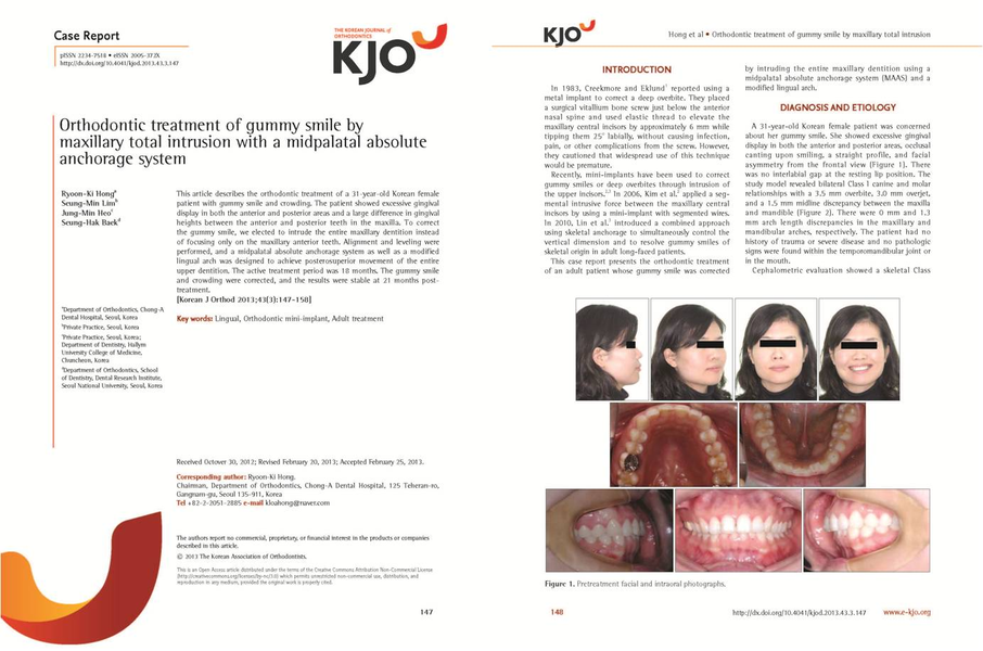 Orthodontic treatment of gummy smile by maxillary total intrusion with a midpalatal absolute anchorage system - 설측교정전문 청아치과의원