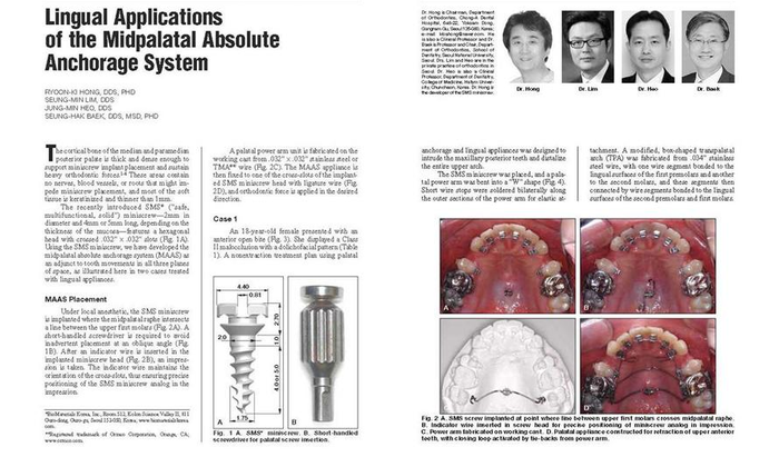 Hong RK, Lim SM, Heo JM, Baik SH. Lingual applications of the midpalatal absolute anchorage system. J Clin Orthod 2012;46:344-353. - 설측교정전문 청아치과의원