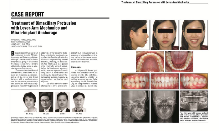 Hong RK, Lim SM, Heo JM, Ahn JH. Treatment of bimaxillary protrusion with lever-arm mechanics and micro-implant anchorage. J Clin Orthod 2014;48:505-12. - 설측교정전문 청아치과의원