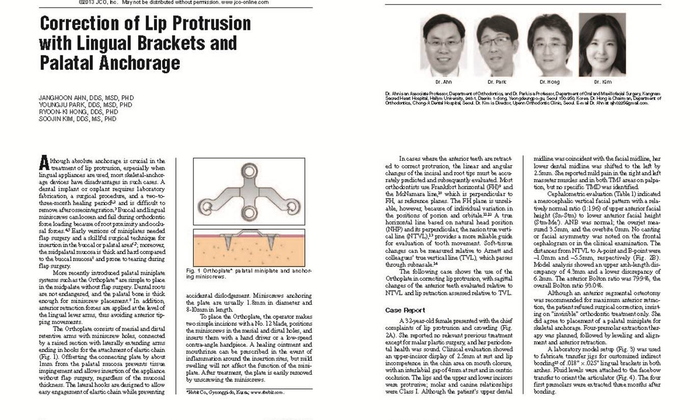Ahn JH, Park YJ, Hong RK, Kim SJ. Correction of lip protrusion with lingual brackets and palatal anchorage. J Clin Orthod 2013;47:614-623. - 설측교정전문 청아치과의원