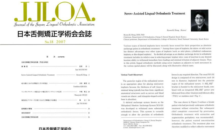 Hong RK. Screw-assisted lingual orthodontic treatment. J Jpn Lingual Othod Assoc 2007:18:2-11. - 설측교정전문 청아치과의원